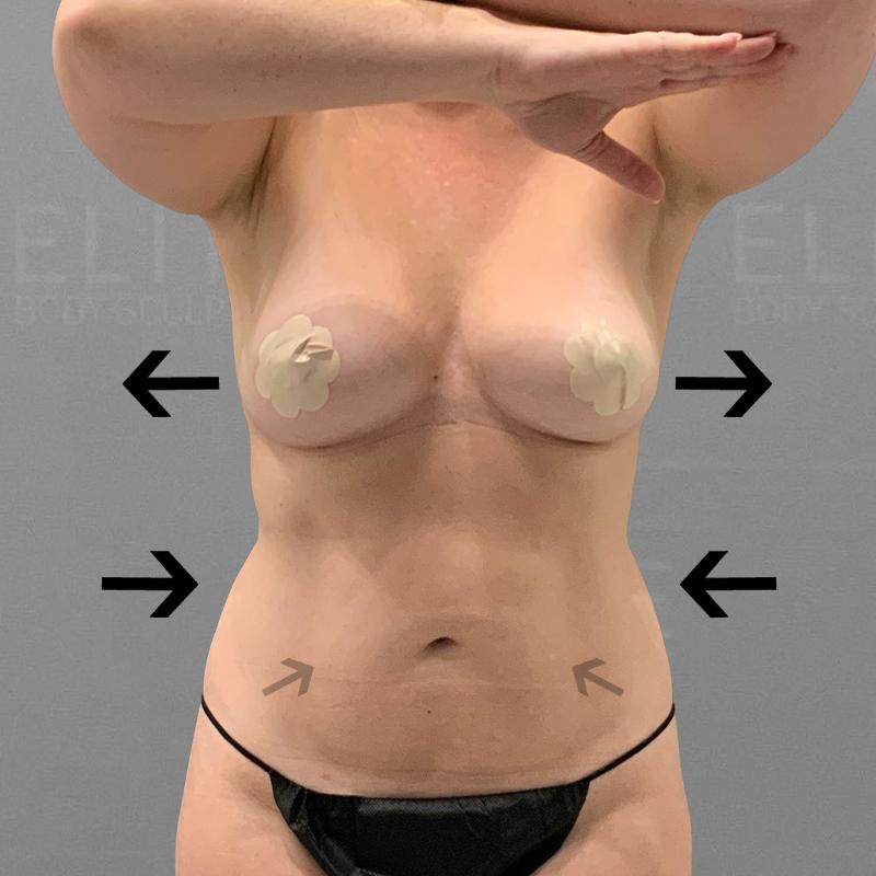 after full abdominal airsculpt