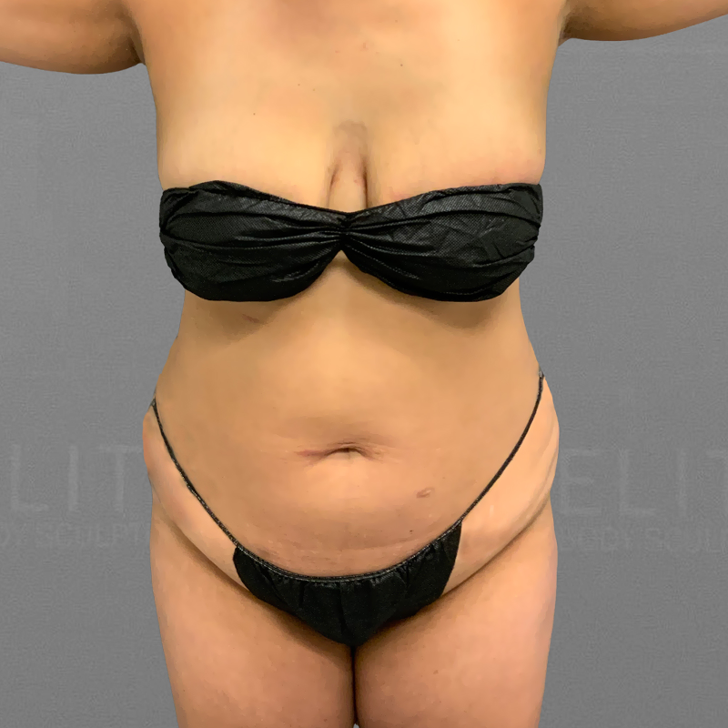 before  full ab and bbl airsculpt