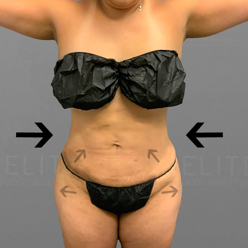 after full ab and bbl airsculpt