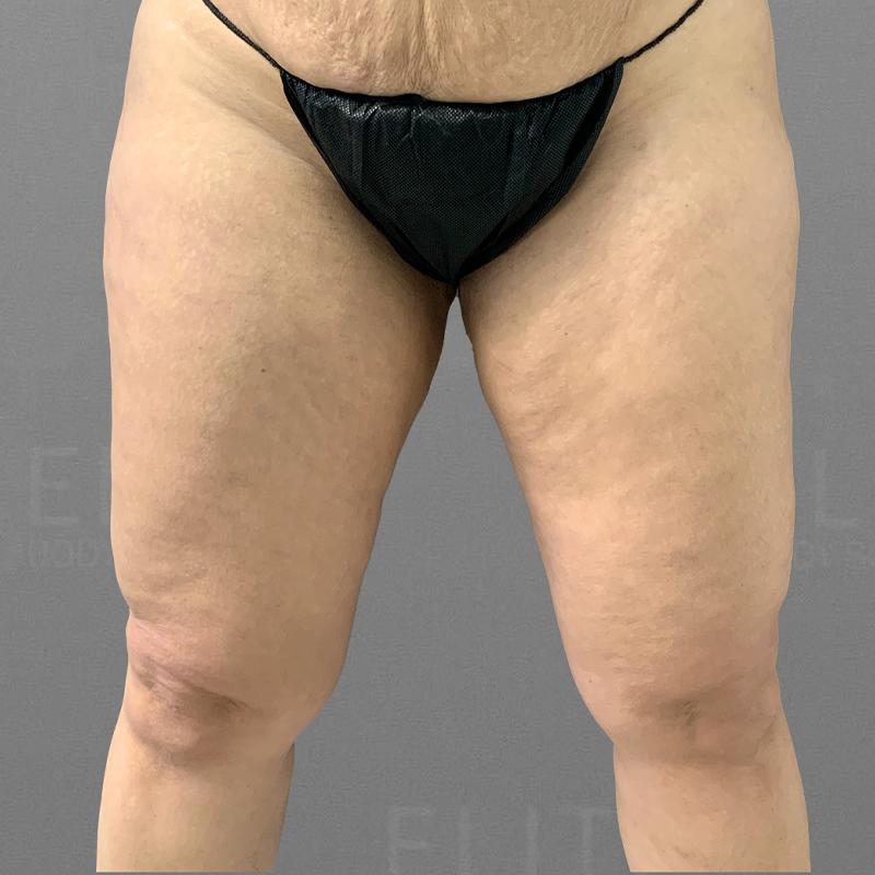 before knee liposuction