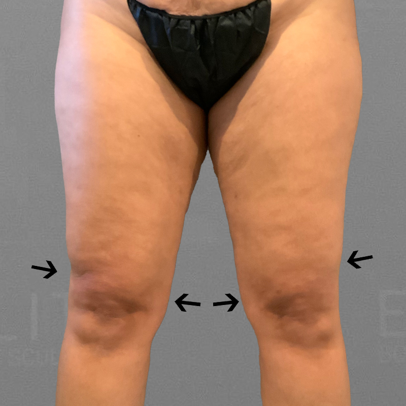 after knee liposuction
