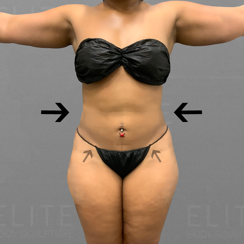 after stomach lipo