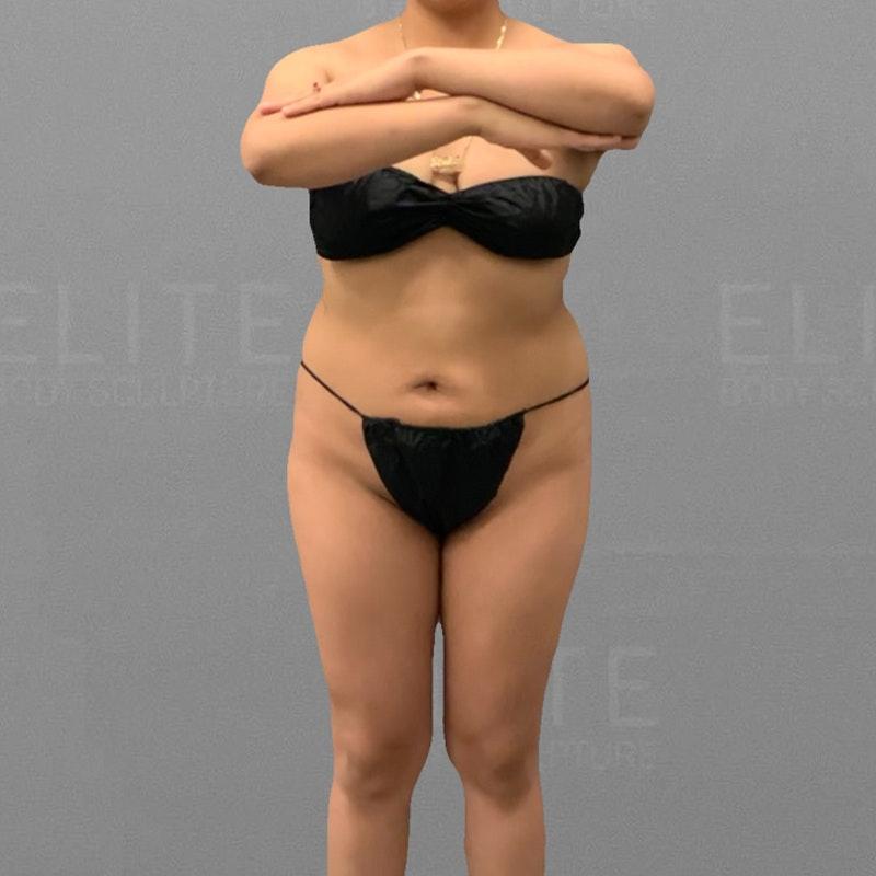 before full abdominal airsculpt bbl