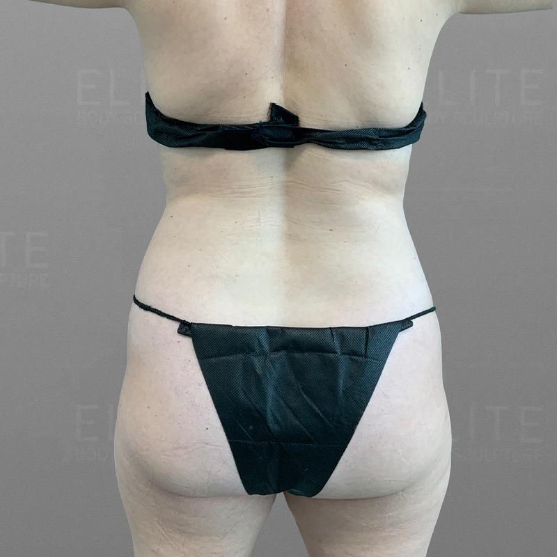 before full abdominal airsculpt