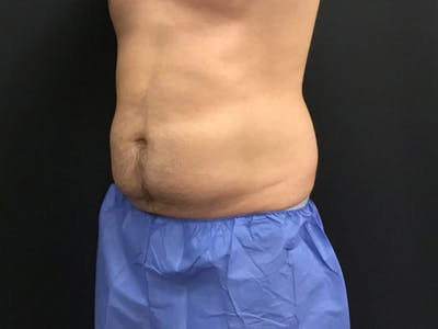 CoolSculpting Gallery - Patient 16689022 - Image 2
