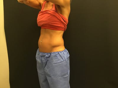 CoolSculpting Gallery - Patient 16689023 - Image 1