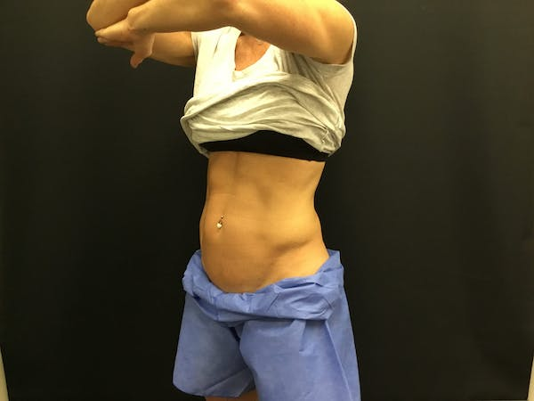 CoolSculpting Gallery - Patient 16689023 - Image 2