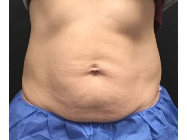 CoolSculpting Gallery - Patient 16689025 - Image 1