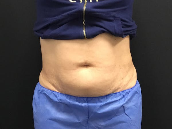CoolSculpting Gallery - Patient 16689026 - Image 1