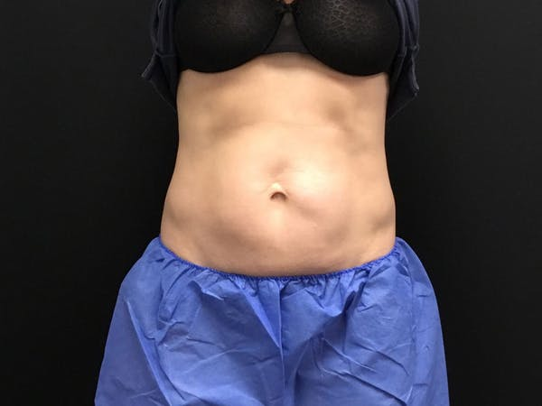 CoolSculpting Gallery - Patient 16689027 - Image 1