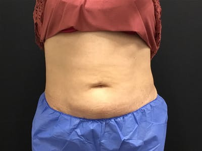 CoolSculpting Gallery - Patient 16689026 - Image 2