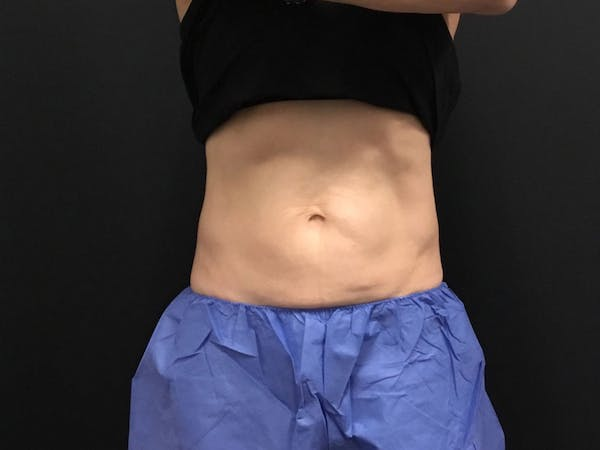 CoolSculpting Gallery - Patient 16689027 - Image 2