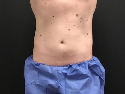 CoolSculpting Gallery - Patient 16689028 - Image 2