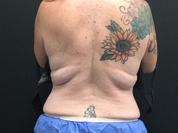 CoolSculpting Gallery - Patient 16689029 - Image 1
