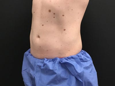 CoolSculpting Gallery - Patient 16689028 - Image 4