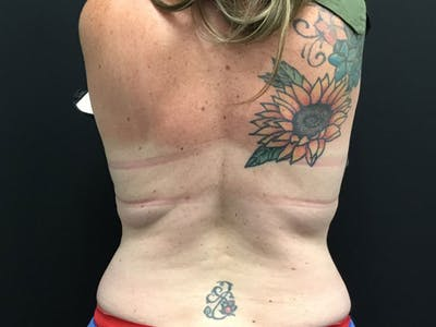 CoolSculpting Gallery - Patient 16689029 - Image 2