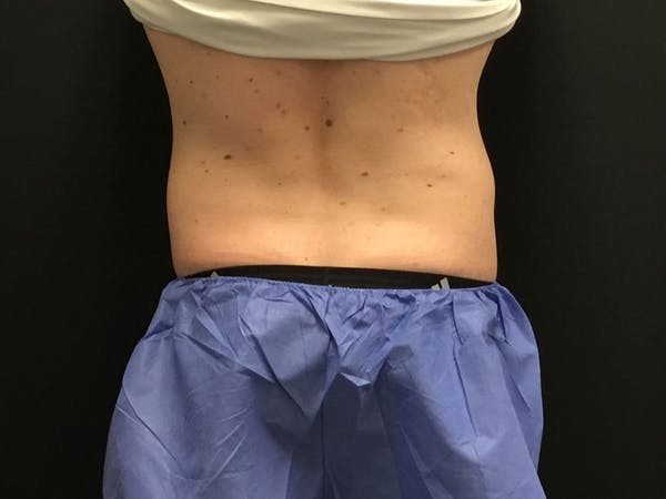 CoolSculpting Gallery - Patient 16689028 - Image 5