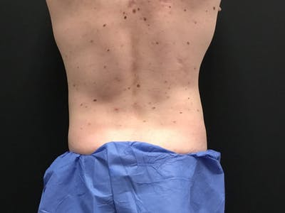 CoolSculpting Gallery - Patient 16689028 - Image 6