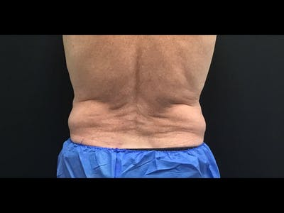 CoolSculpting Gallery - Patient 16689031 - Image 1