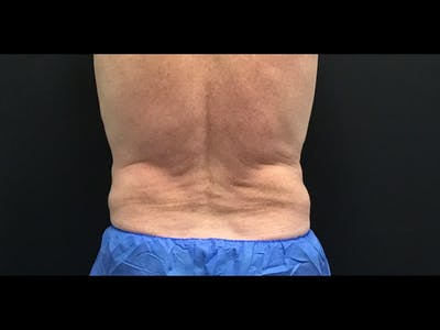 CoolSculpting Gallery - Patient 16689031 - Image 2