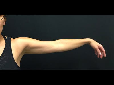 CoolSculpting Gallery - Patient 16689032 - Image 2