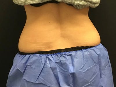 CoolSculpting Gallery - Patient 16689036 - Image 1