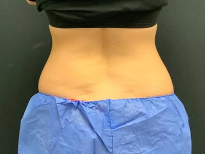 CoolSculpting Gallery - Patient 16689036 - Image 2