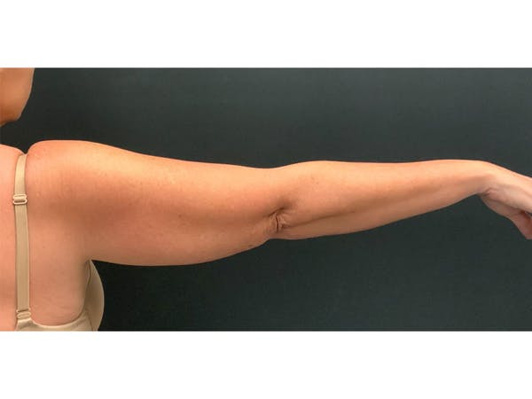 CoolSculpting Gallery - Patient 16689037 - Image 1