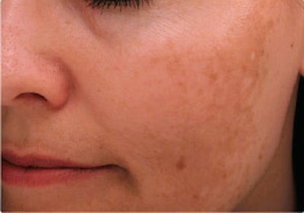 Skin Treatment Gallery - Patient 16689045 - Image 1