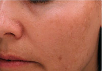 Skin Treatment Gallery - Patient 16689045 - Image 2