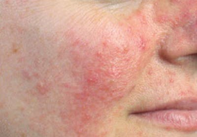 Skin Treatment Gallery - Patient 16689046 - Image 1