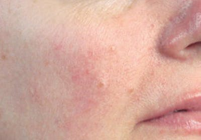 Skin Treatment Gallery - Patient 16689046 - Image 2