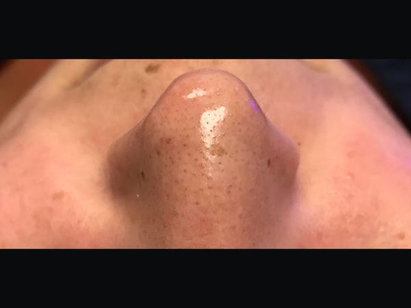 Skin Treatment Gallery - Patient 16689047 - Image 1