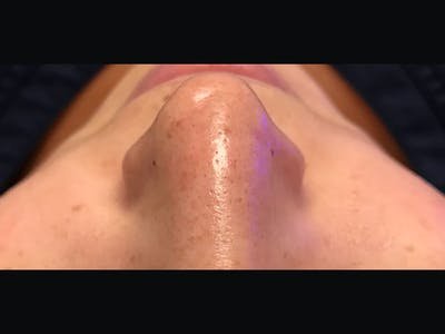 Skin Treatment Gallery - Patient 16689047 - Image 2