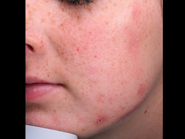 Skin Treatment Gallery - Patient 16689048 - Image 1