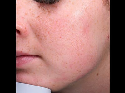 Skin Treatment Gallery - Patient 16689048 - Image 2