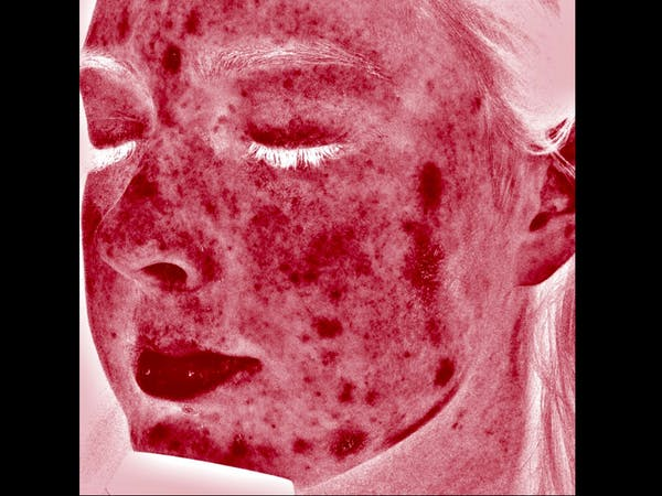 Skin Treatment Gallery - Patient 16689048 - Image 3