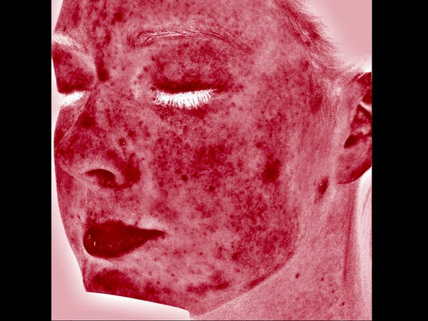 Skin Treatment Gallery - Patient 16689048 - Image 4