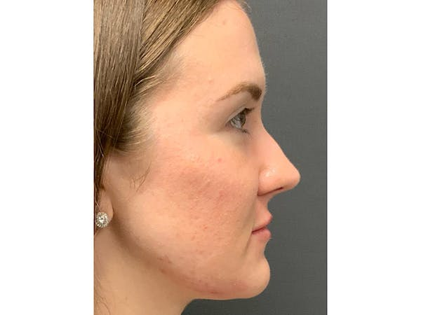 Injections Gallery - Patient 16689079 - Image 2