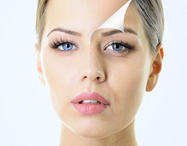 ZL Medspa Blog | 10 Things to Know Before Getting a Peel