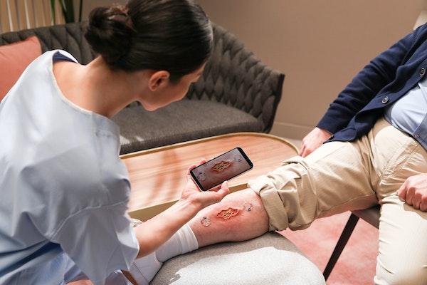 Nurse scanning a wound