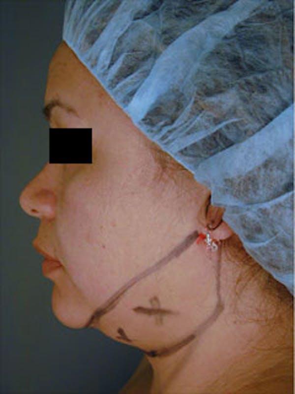 Neck Gallery - Patient 13900552 - Image 1