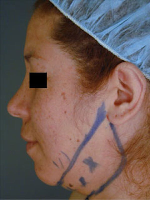 Neck Gallery - Patient 13900553 - Image 1