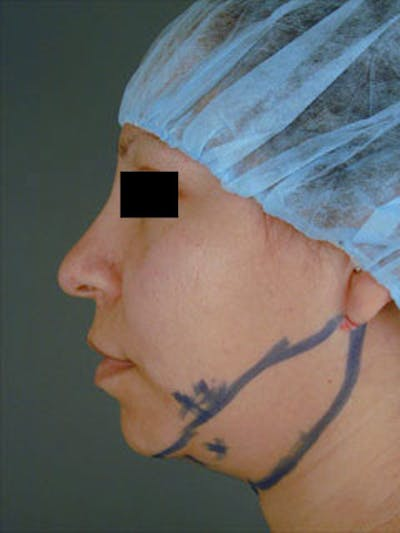 Neck Gallery - Patient 13900554 - Image 1