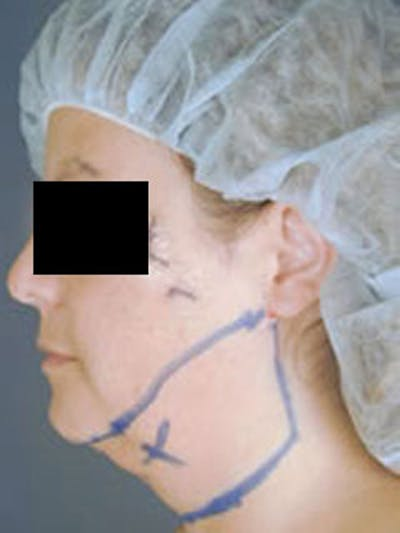 Neck Gallery - Patient 13900556 - Image 1