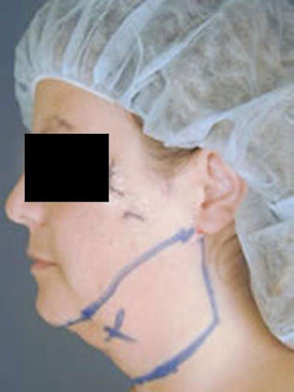 Neck Gallery - Patient 13900556 - Image 1