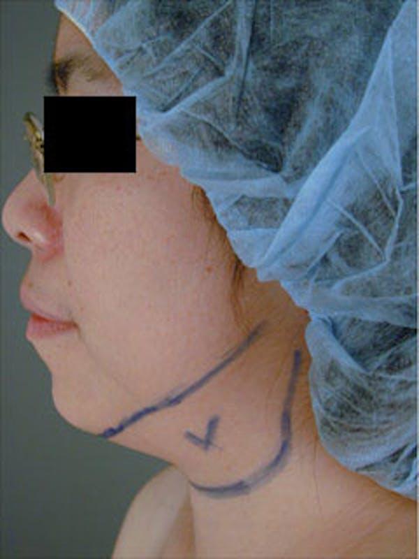 Neck Gallery - Patient 13900557 - Image 1