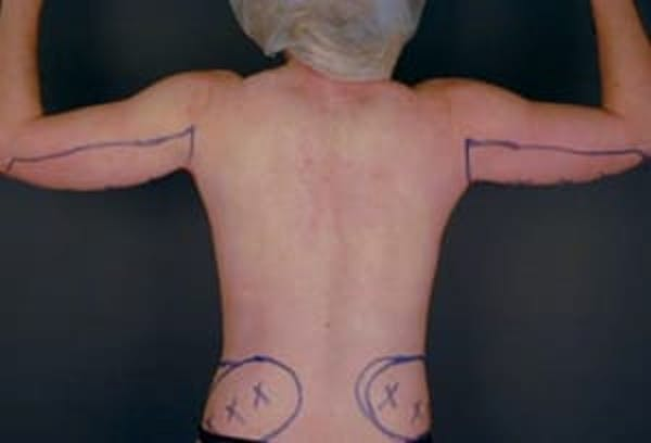 Arms Gallery - Patient 13900562 - Image 1