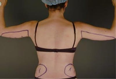 Arms Gallery - Patient 13900580 - Image 1