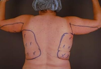 Arms Gallery - Patient 13900581 - Image 1